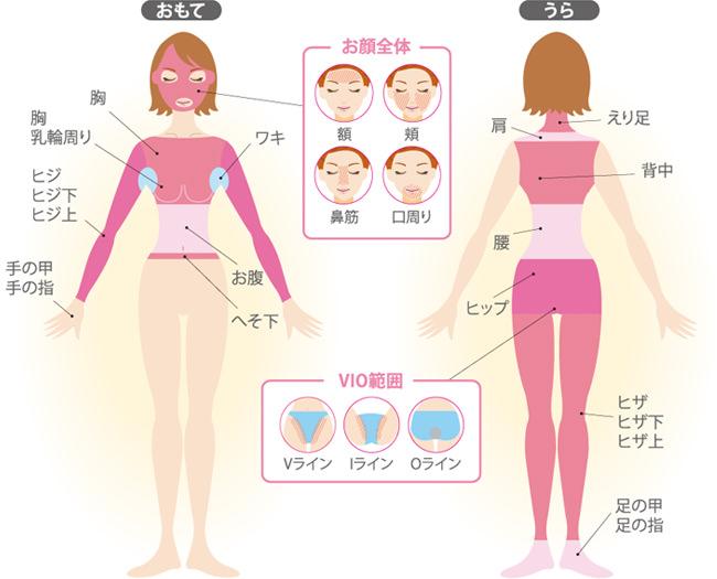 ベルルミエール -脱毛の口コミ調査サイト【脱毛レシピ】